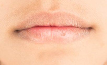 las causas de los labios secos y agrietados y como cuidarlos para evitarlo
